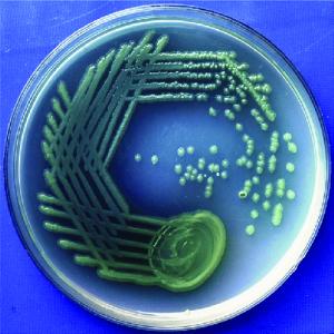 سودوموناس آئروژینوسا(pseudomonas aeruginosa)