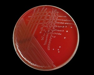 انتروکوکوس هیرائه (Enterococcus hirae )